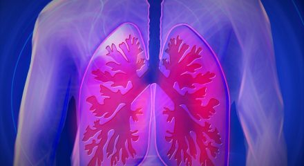 lung conditions negligence