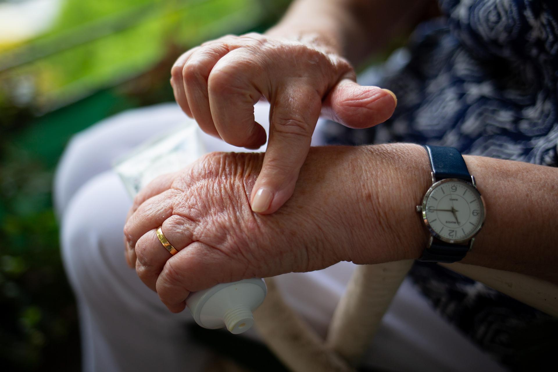 rheumatoid arthritis negligence